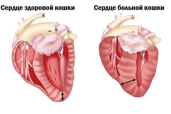 Гипертрофическая кардиомиопатия