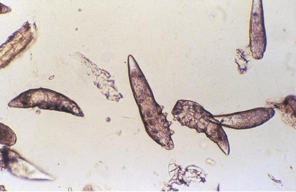 микроскопический клещ демодекс