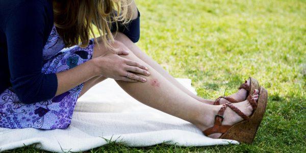 женщина с комариным укусом сидит на покрывале