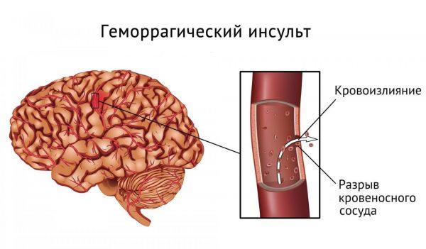 Схема кровоизлияния в мозг