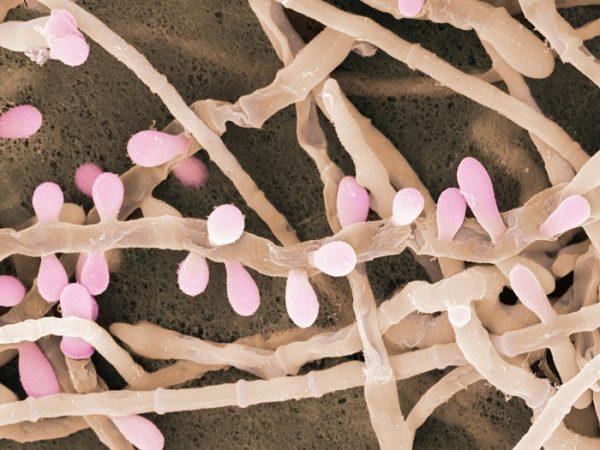 Дерматофитный грибок Трихофитон