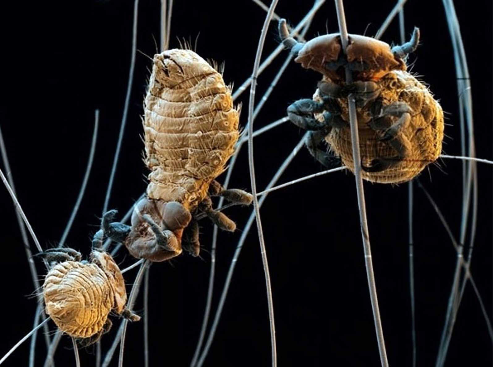 блохи вши под микроскопом цветное фото кабачков можно подать