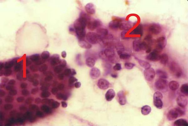 Опухоли под микроскопом