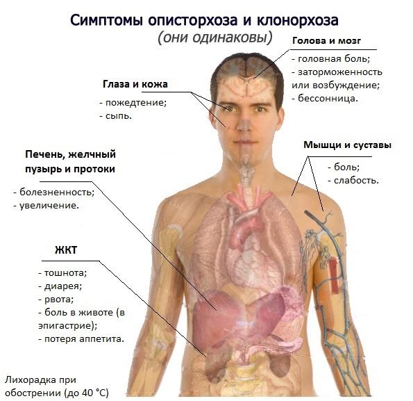 Симптомы описторхоза у человека