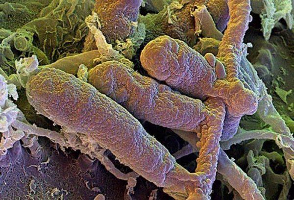 Стригущий лишай под микроскопом