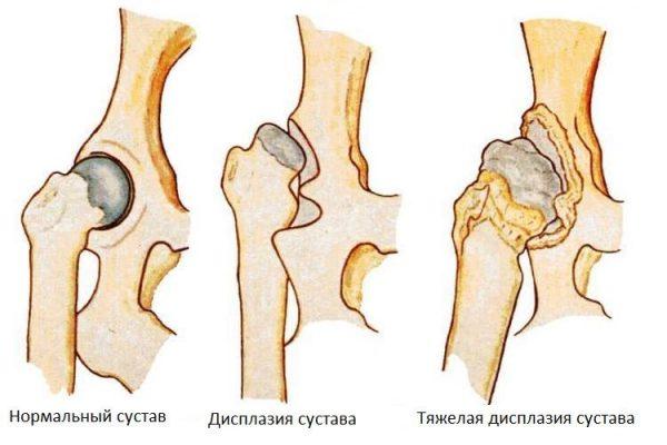Здоровый и больной суставы