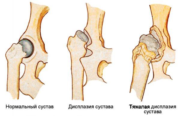 Сравнение здорового и повреждённого суставов при дисплазии